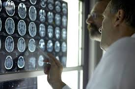 Doctors studying memory loss in brain images